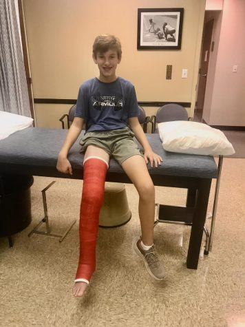 Jack Baldwin, a sophomore, sustained his first injury in September 2017. He wore the cast for 15 weeks. Despite his best efforts, he has struggled to remain injury-free since the initial football injury.